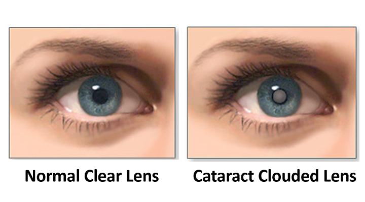025-Cataract Surgery_720x400